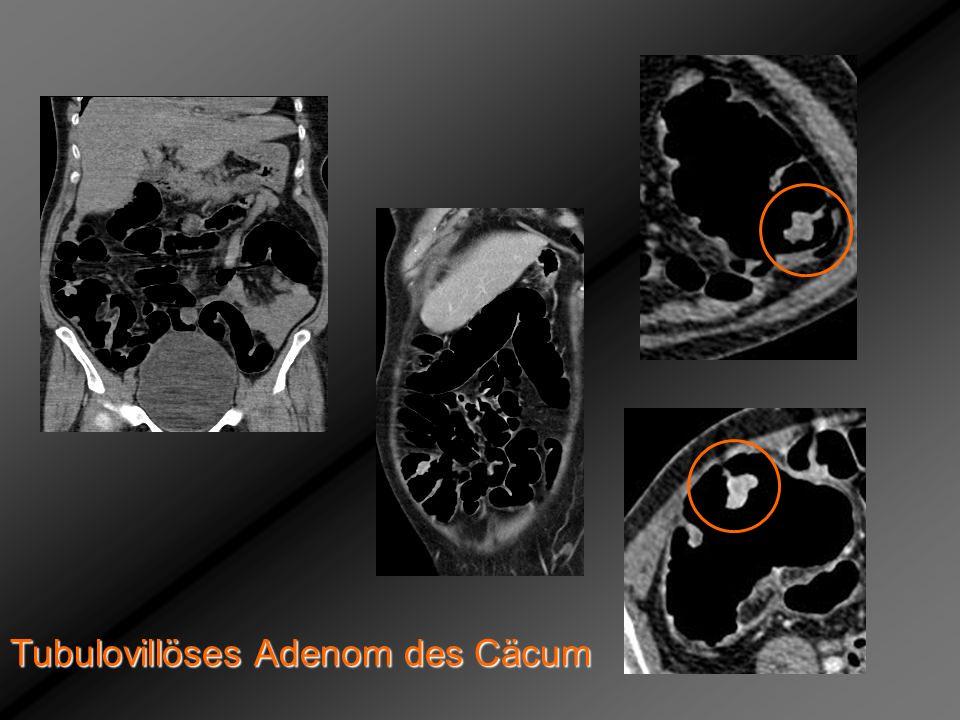 Tubulovillöses Adenom des Cäcum