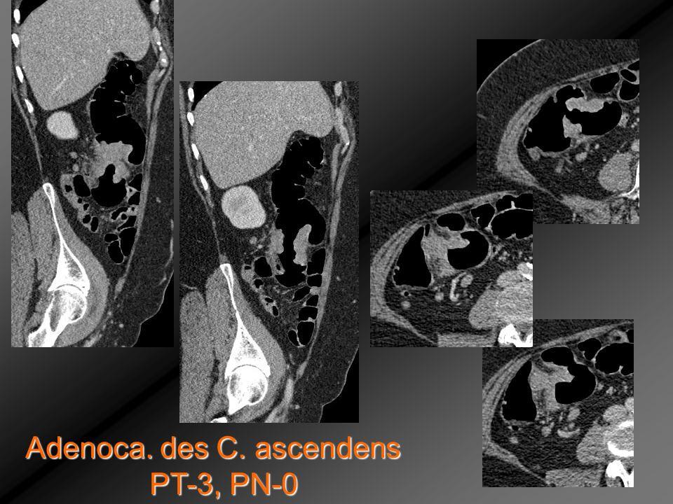 Adenoca. des C. ascendens PT-3, PN-0