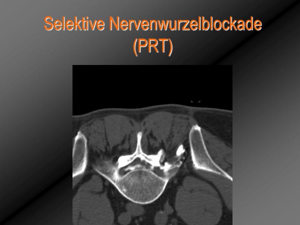 Selektive Nervenwurzelblockade (PRT)