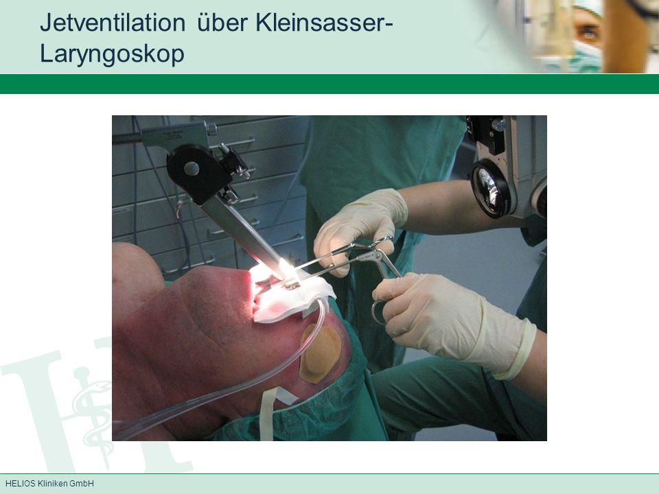 Jetventilation über Kleinsasser-Laryngoskop