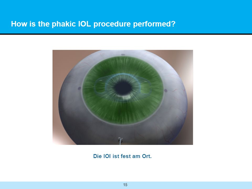 How is the phakic IOL procedure performed