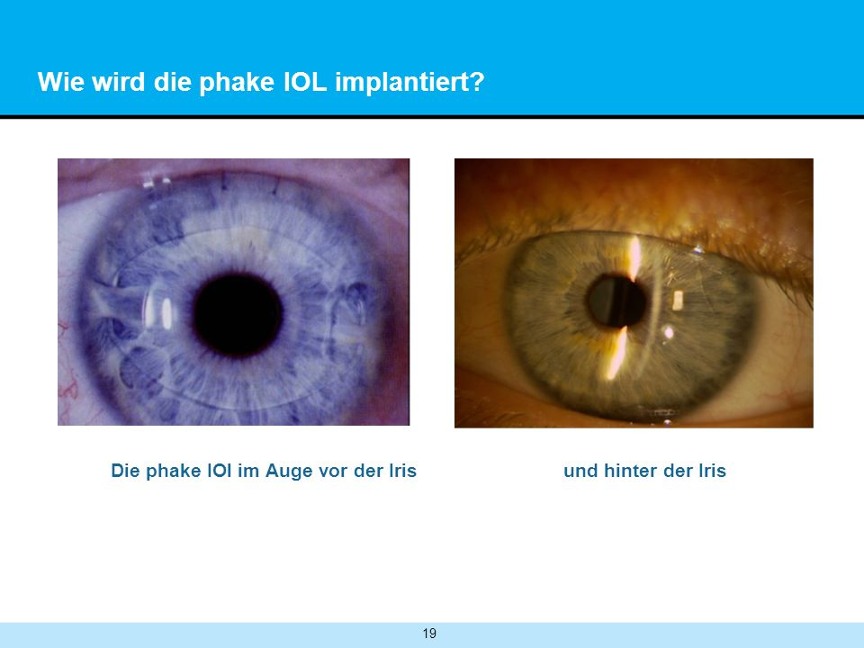 Wie wird die phake IOL implantiert