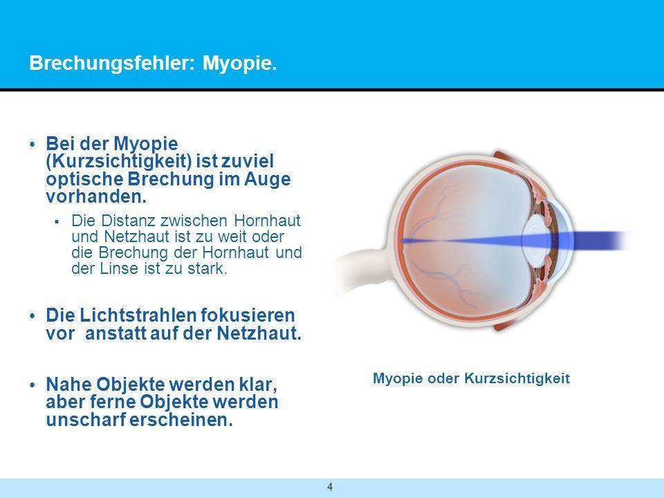 Brechungsfehler: Myopie.