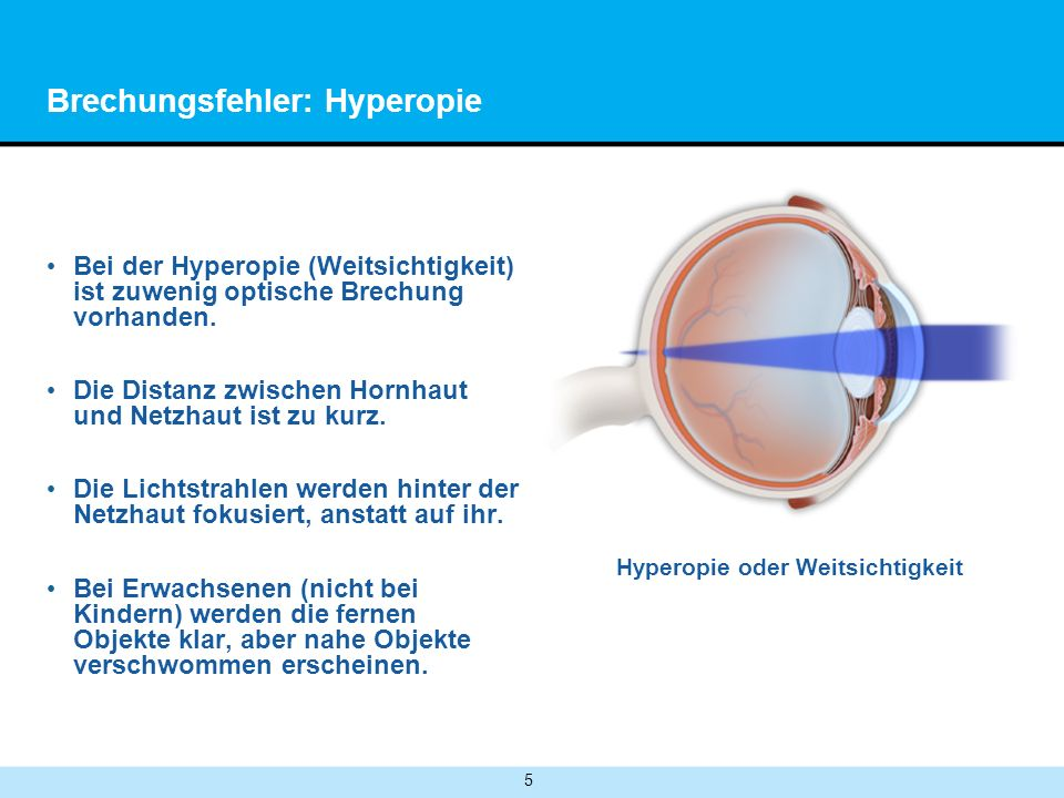 Brechungsfehler: Hyperopie