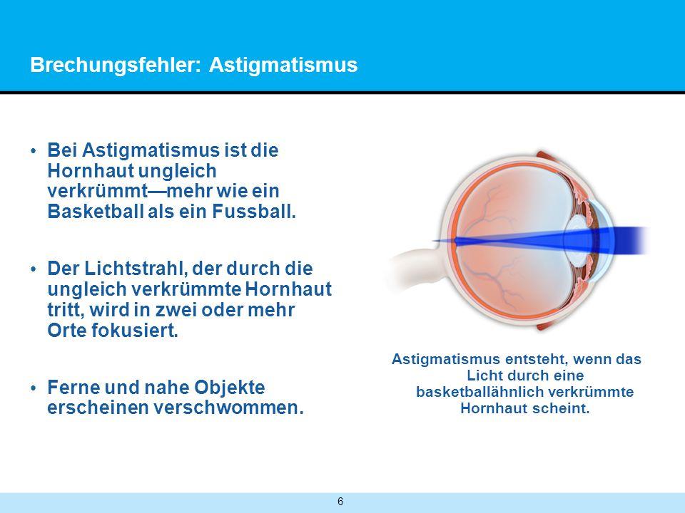 Brechungsfehler: Astigmatismus