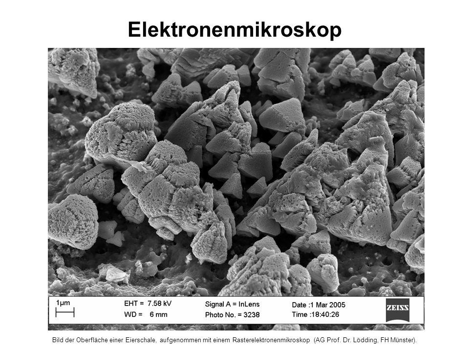 Elektronenmikroskop Bild der Oberfläche einer Eierschale, aufgenommen mit einem Rasterelektronenmikroskop (AG Prof.