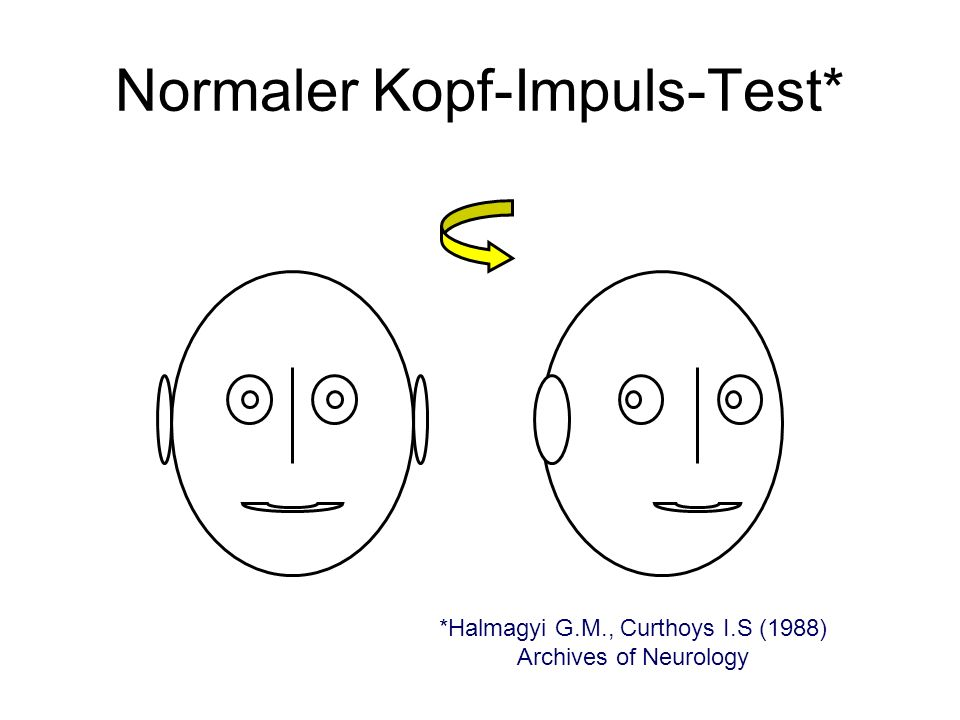Normaler Kopf-Impuls-Test*