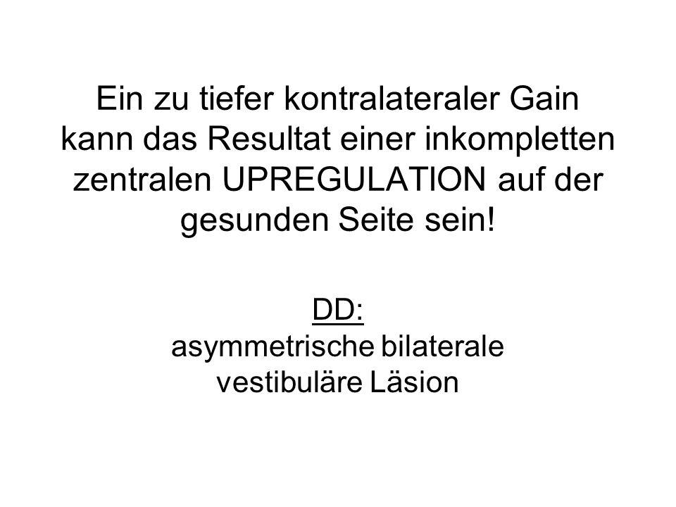 DD: asymmetrische bilaterale vestibuläre Läsion