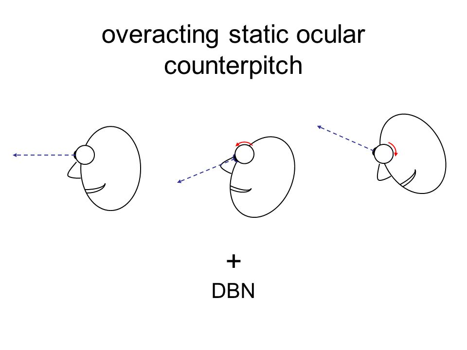 overacting static ocular counterpitch