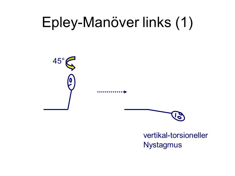 Epley-Manöver links (1)