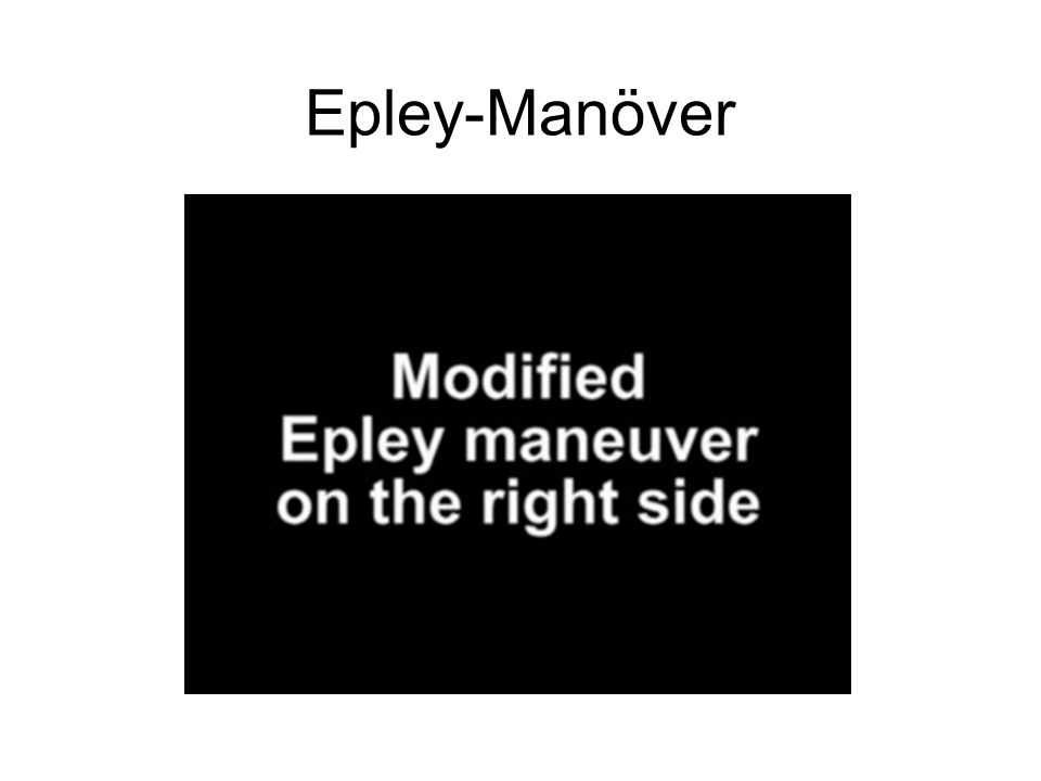 Epley-Manöver