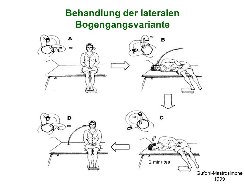 Behandlung der lateralen Bogengangsvariante