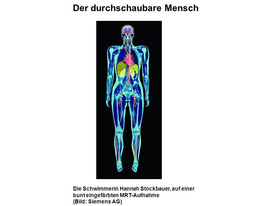 Charmant Visuelle Analogie Leitfaden Für Die Menschliche Anatomie ...