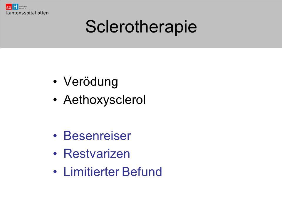 Sclerotherapie Verödung Aethoxysclerol Besenreiser Restvarizen