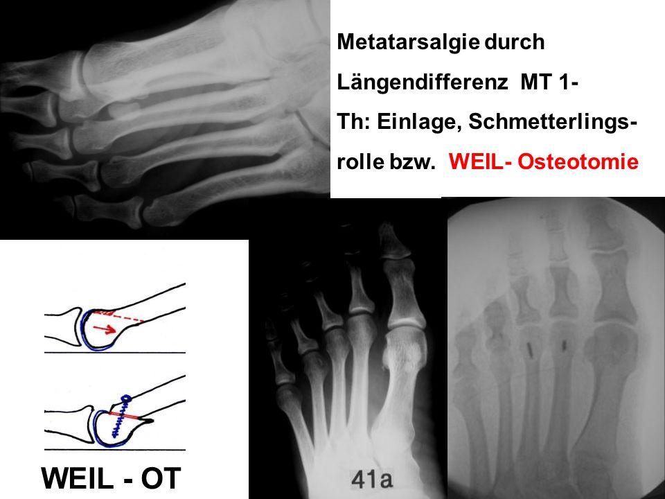 WEIL - OT Metatarsalgie durch Längendifferenz MT 1-