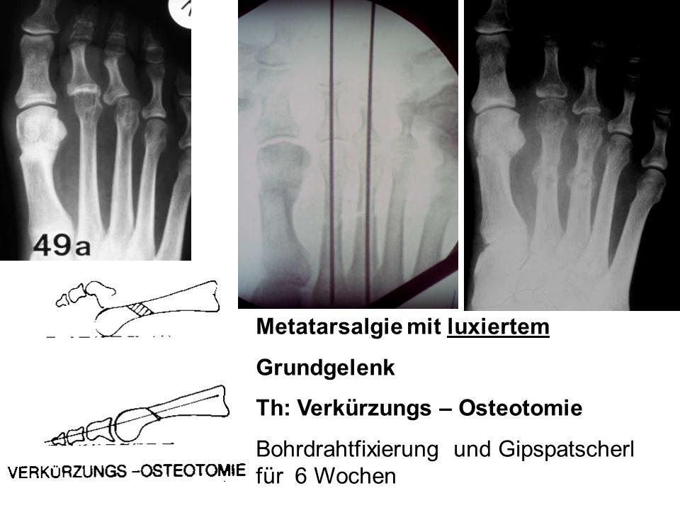 Metatarsalgie mit luxiertem Grundgelenk Th: Verkürzungs – Osteotomie