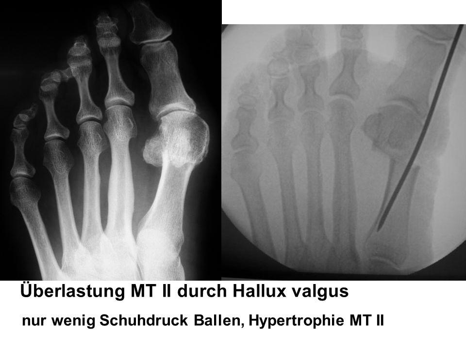 Überlastung MT II durch Hallux valgus