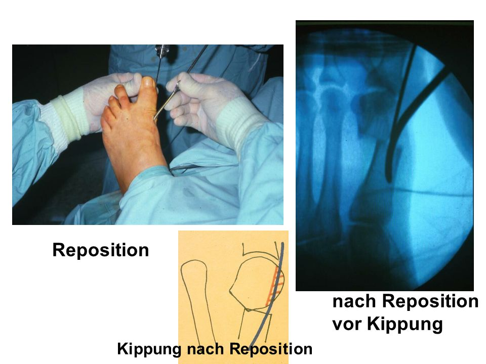 Reposition nach Reposition vor Kippung Kippung nach Reposition
