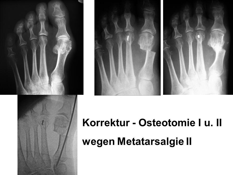 Korrektur - Osteotomie I u. II wegen Metatarsalgie II