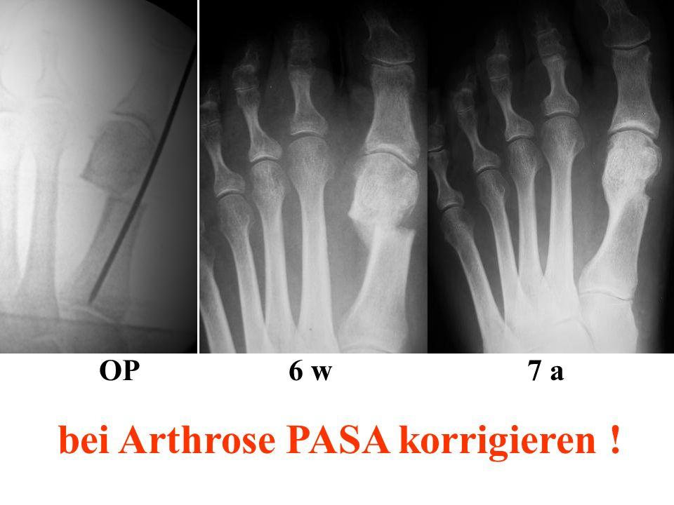 bei Arthrose PASA korrigieren !