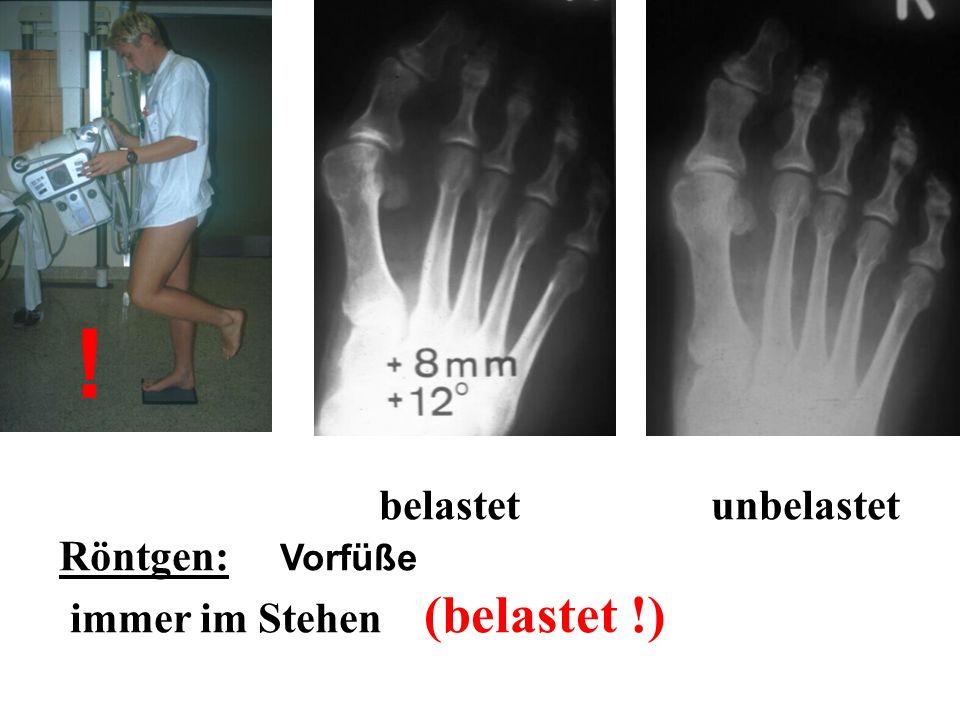 ! belastet unbelastet Röntgen: Vorfüße immer im Stehen (belastet !)