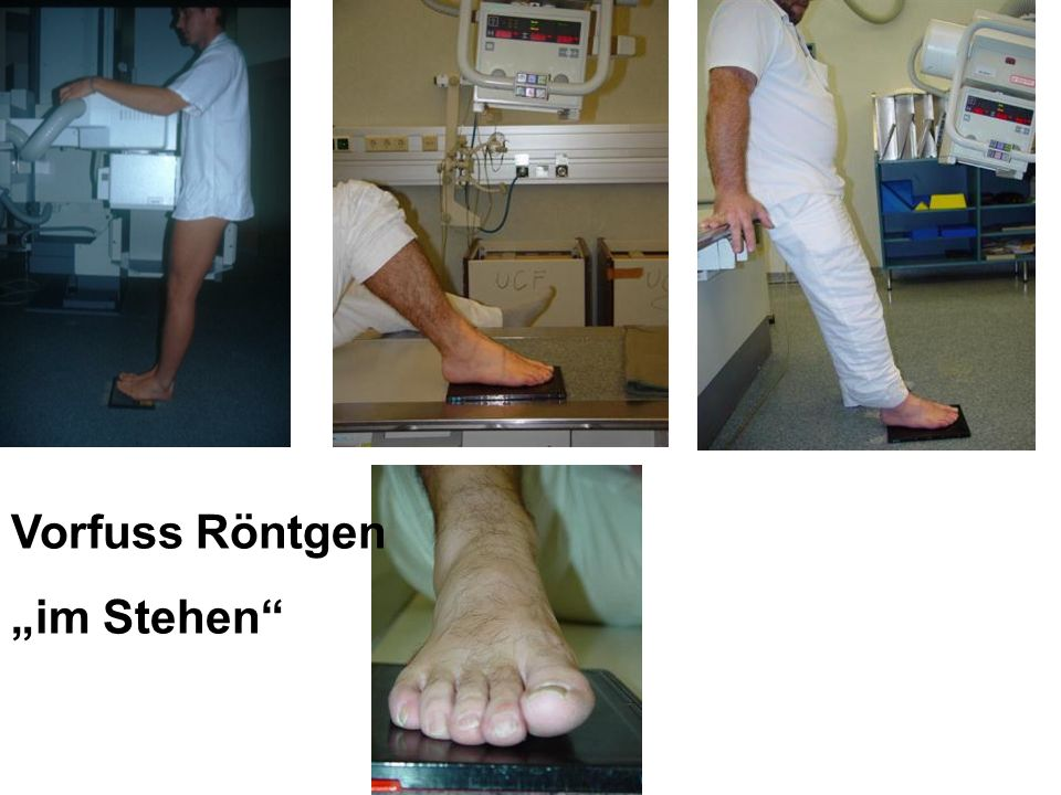 """Vorfuss Röntgen """"im Stehen Abbildung 18"""
