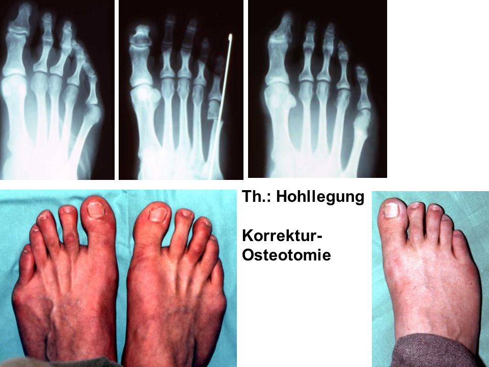 Korrektur-Osteotomie