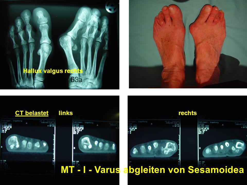 MT - I - Varus abgleiten von Sesamoidea