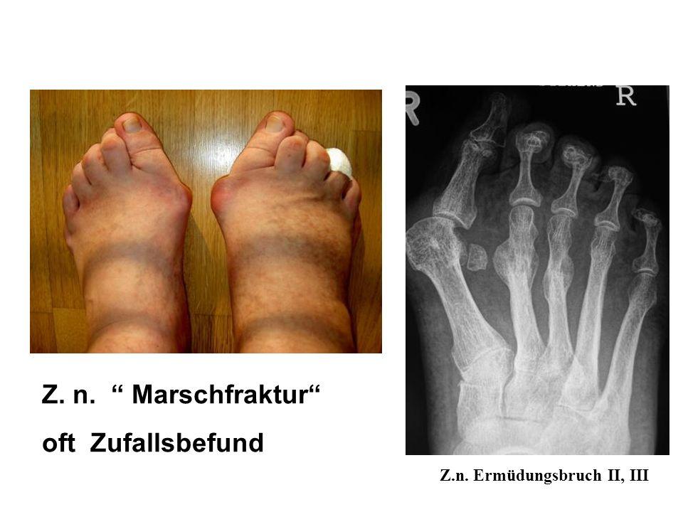 Z. n. Marschfraktur oft Zufallsbefund Z.n. Ermüdungsbruch II, III