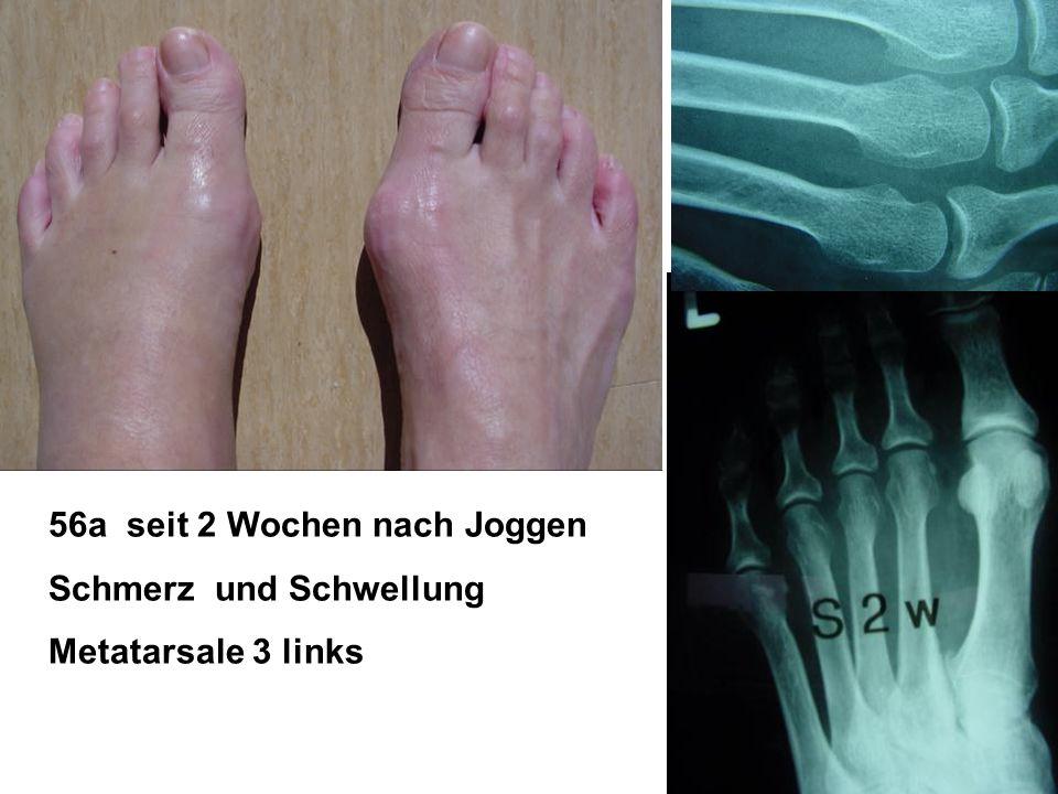 56a seit 2 Wochen nach Joggen Schmerz und Schwellung