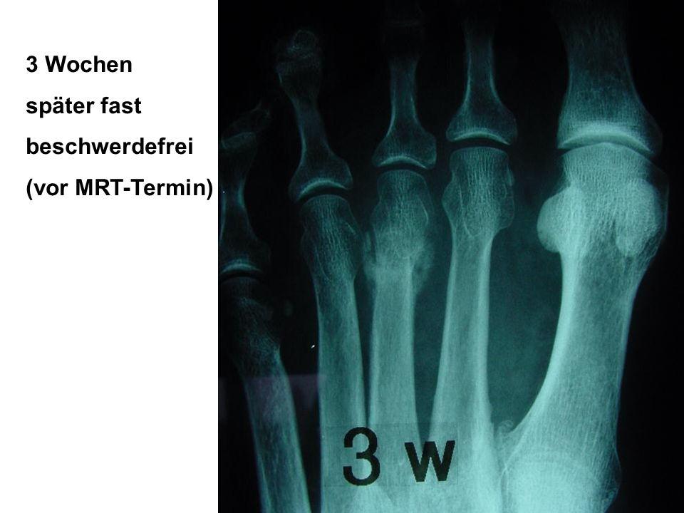 3 Wochen später fast beschwerdefrei (vor MRT-Termin) Abbildung 7