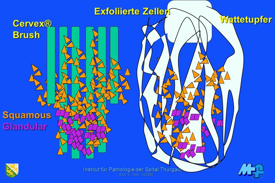 Exfoliierte Zellen Wattetupfer Cervex® Brush Squamous Glandular