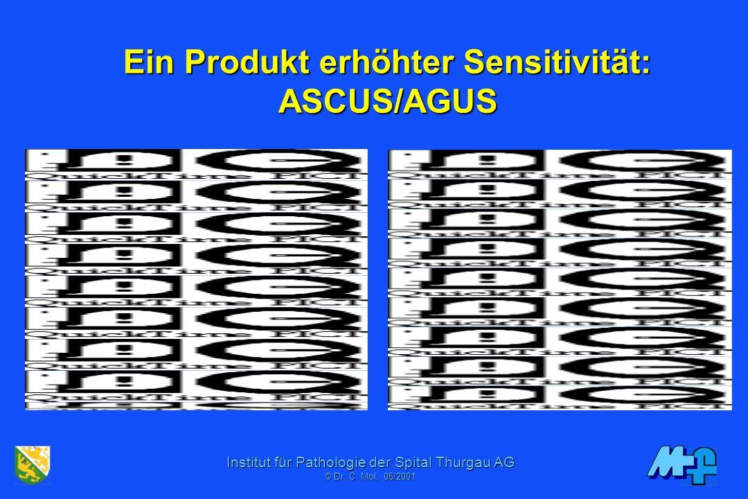 Ein Produkt erhöhter Sensitivität: ASCUS/AGUS