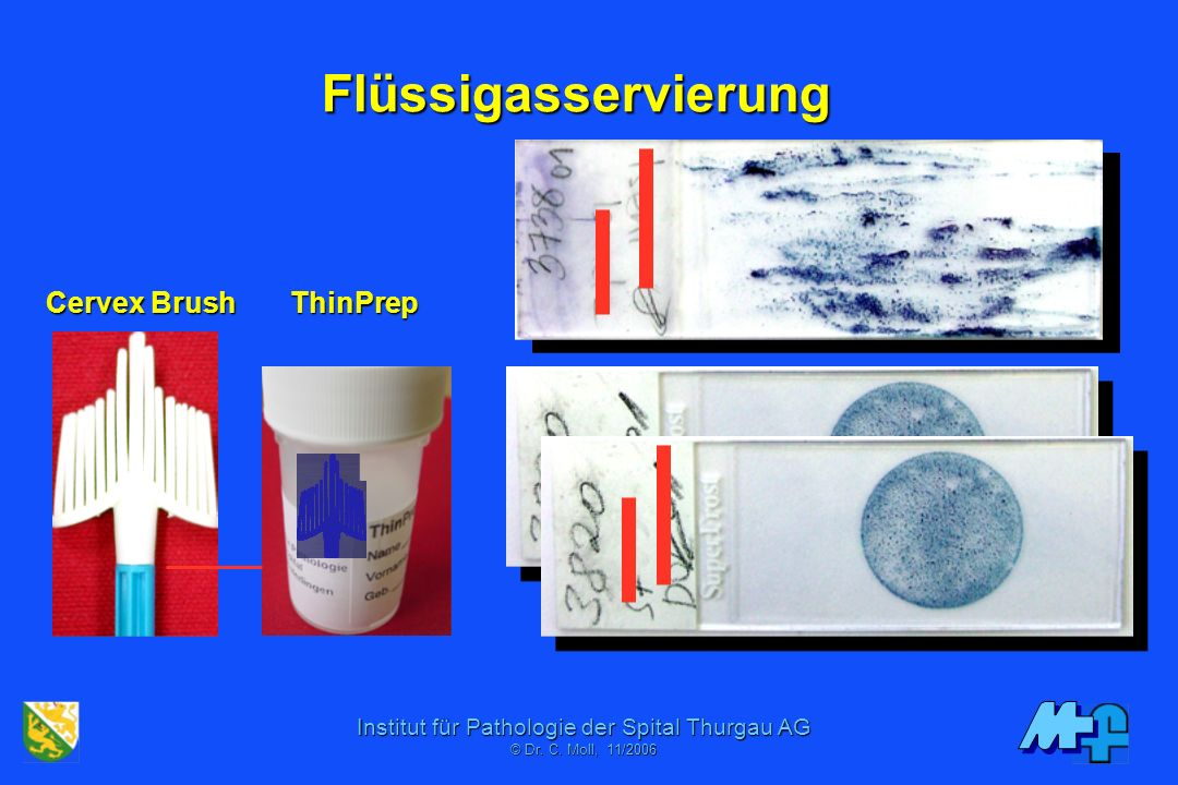 Flüssigasservierung Cervex Brush ThinPrep