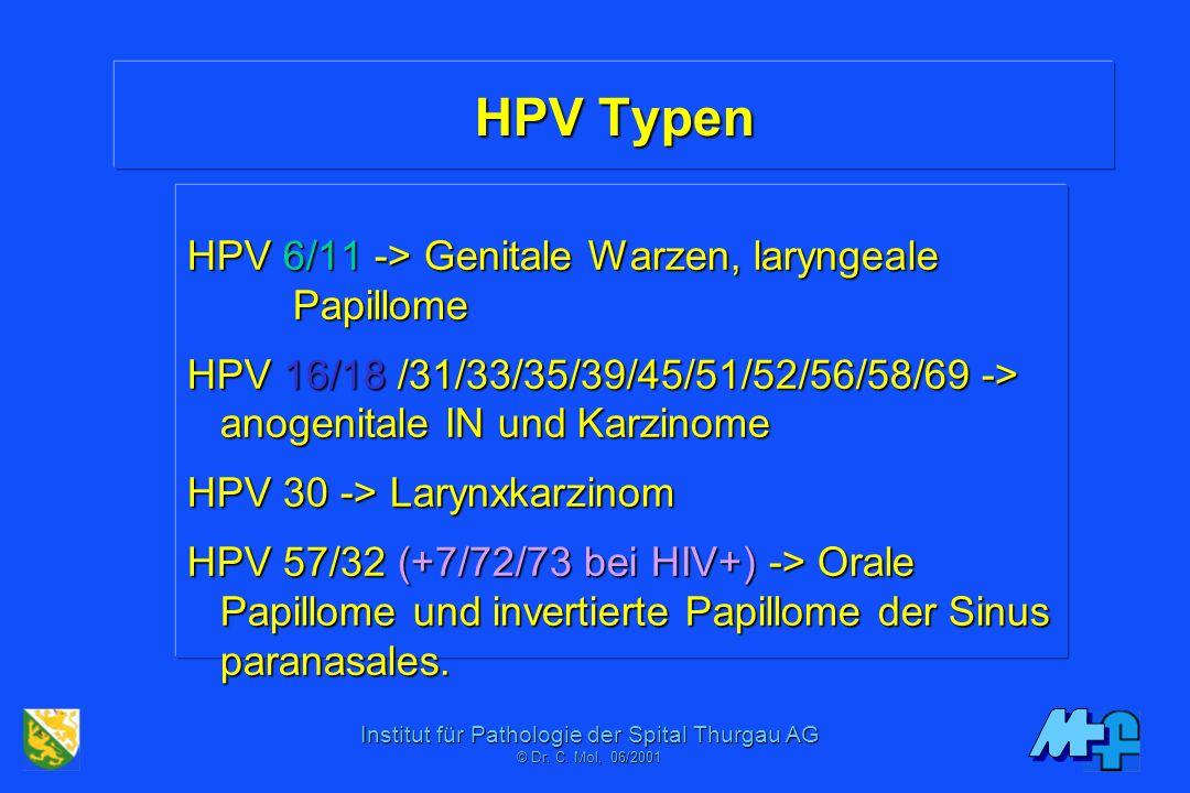 HPV Typen HPV 6/11 -> Genitale Warzen, laryngeale Papillome