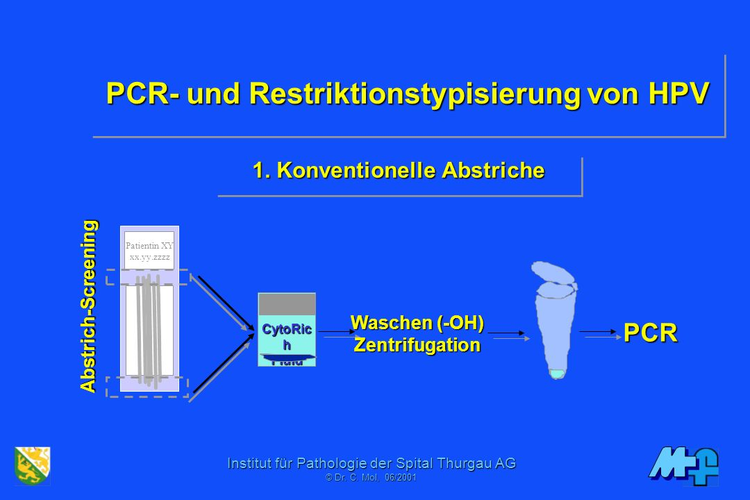 PCR- und Restriktionstypisierung von HPV