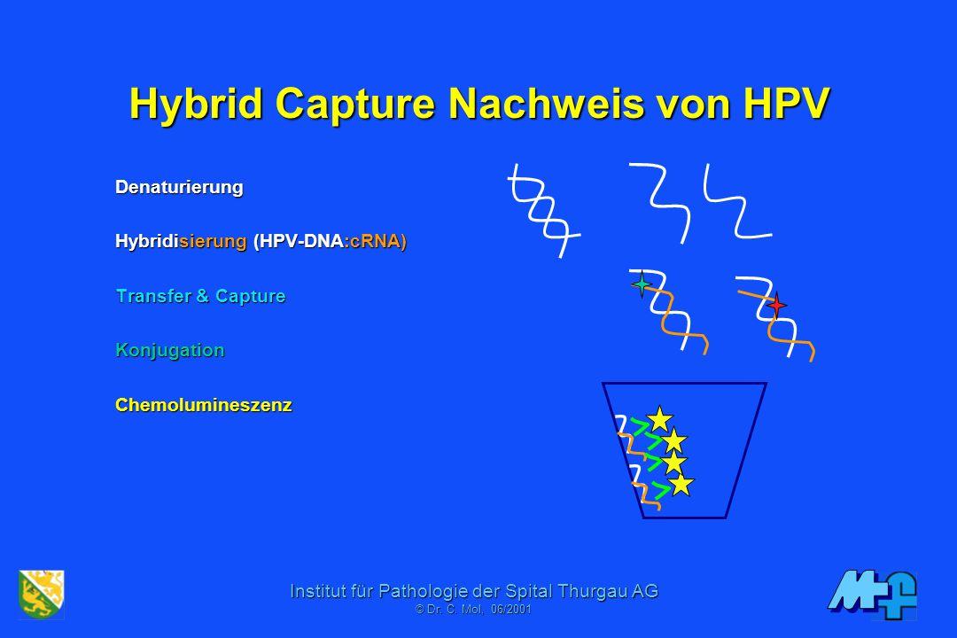 Hybrid Capture Nachweis von HPV