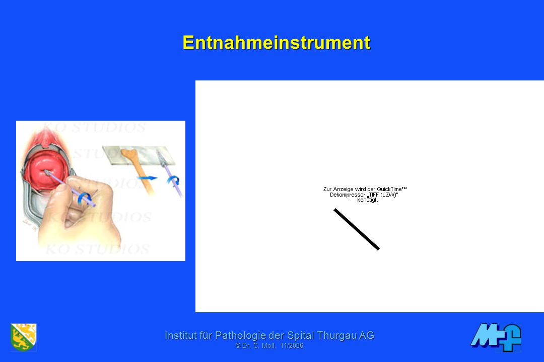 Entnahmeinstrument