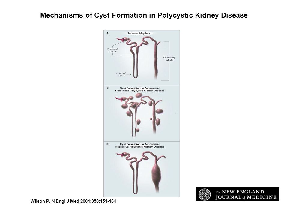 Mechanisms of Cyst Formation in Polycystic Kidney Disease