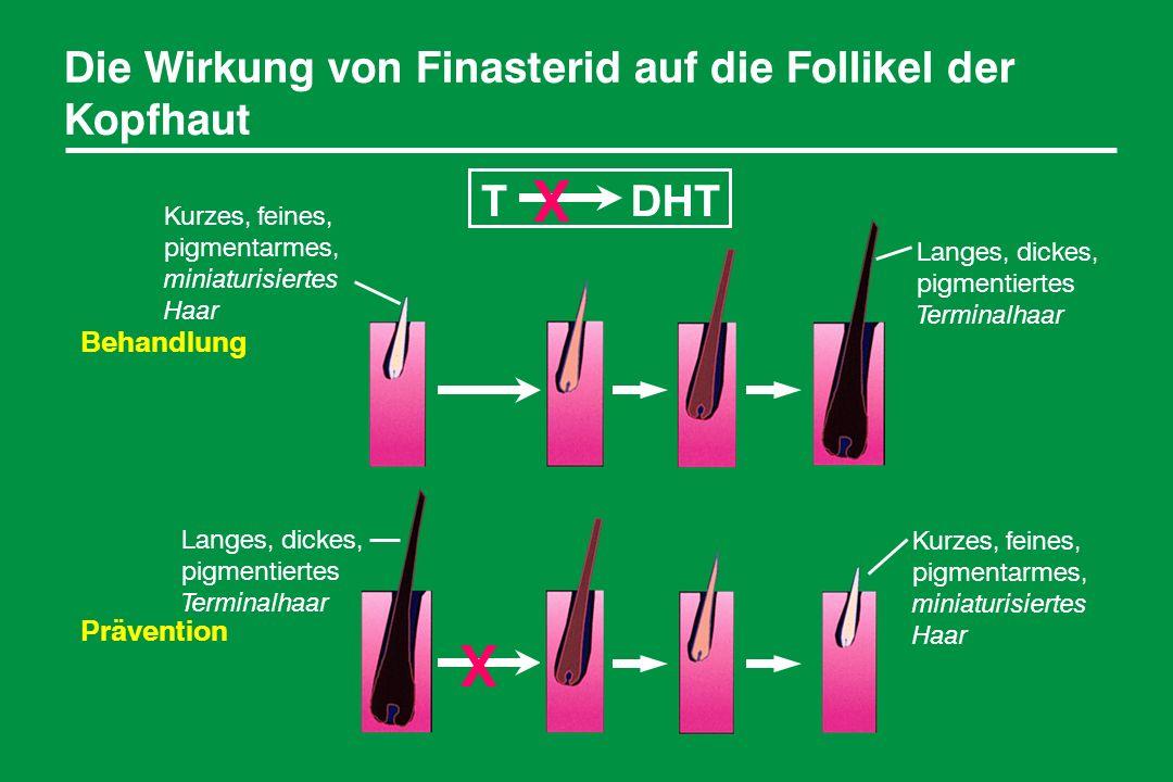 X X Die Wirkung von Finasterid auf die Follikel der Kopfhaut T DHT