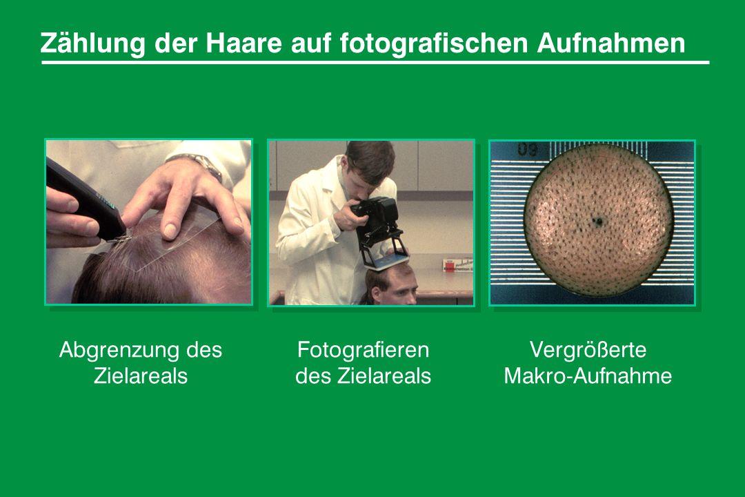 Zählung der Haare auf fotografischen Aufnahmen