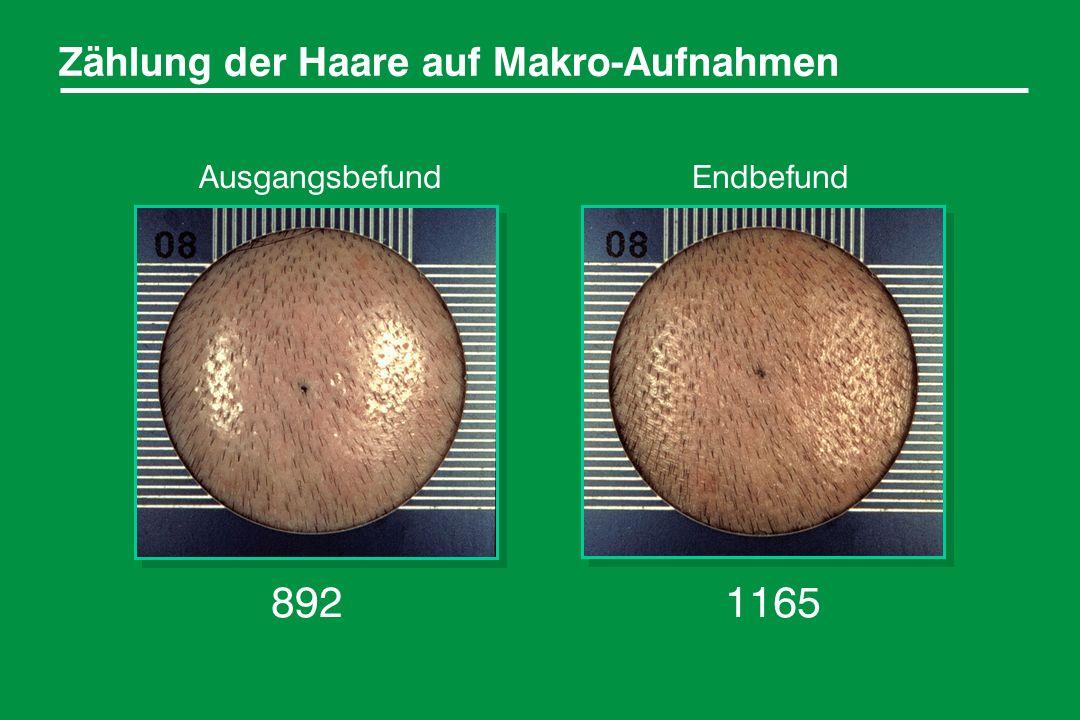 892 1165 Zählung der Haare auf Makro-Aufnahmen Ausgangsbefund