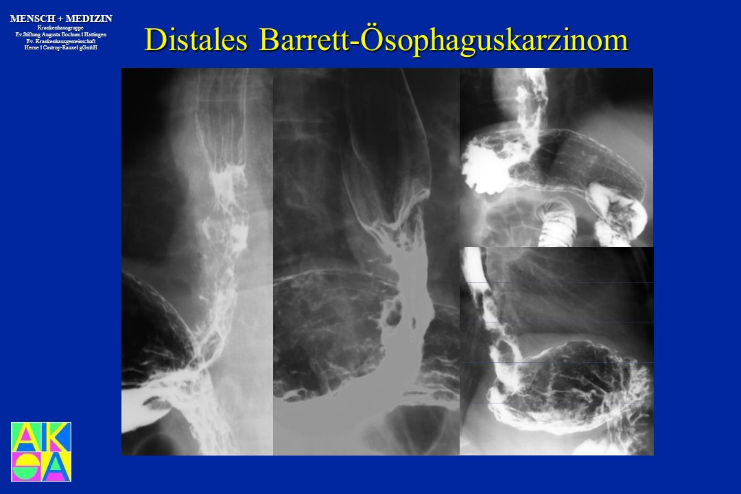 Distales Barrett-Ösophaguskarzinom