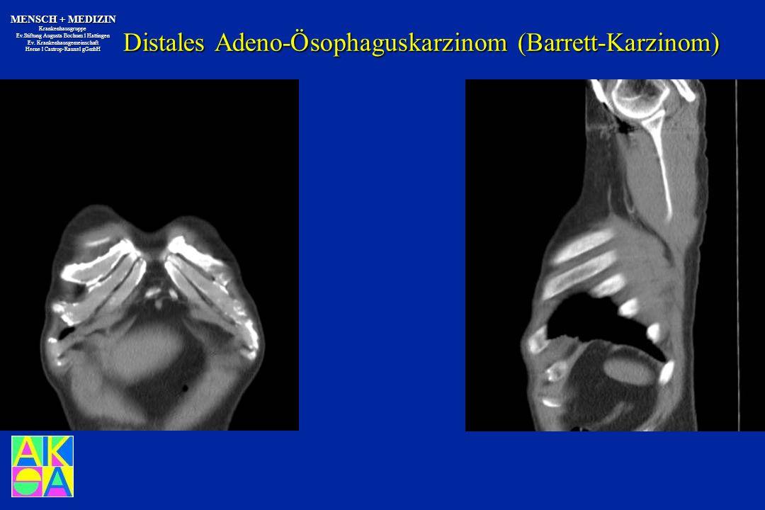 Distales Adeno-Ösophaguskarzinom (Barrett-Karzinom)