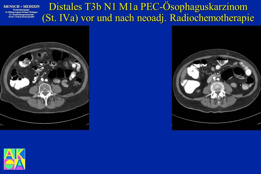 Distales T3b N1 M1a PEC-Ösophaguskarzinom (St. IVa) vor und nach neoadj. Radiochemotherapie