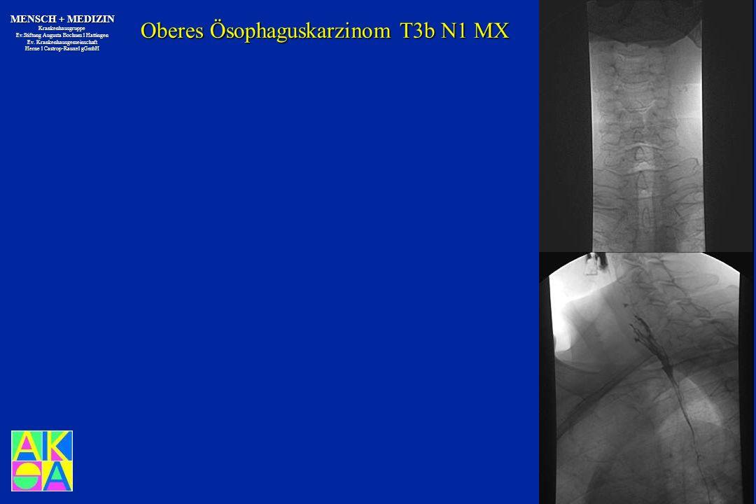 Oberes Ösophaguskarzinom T3b N1 MX