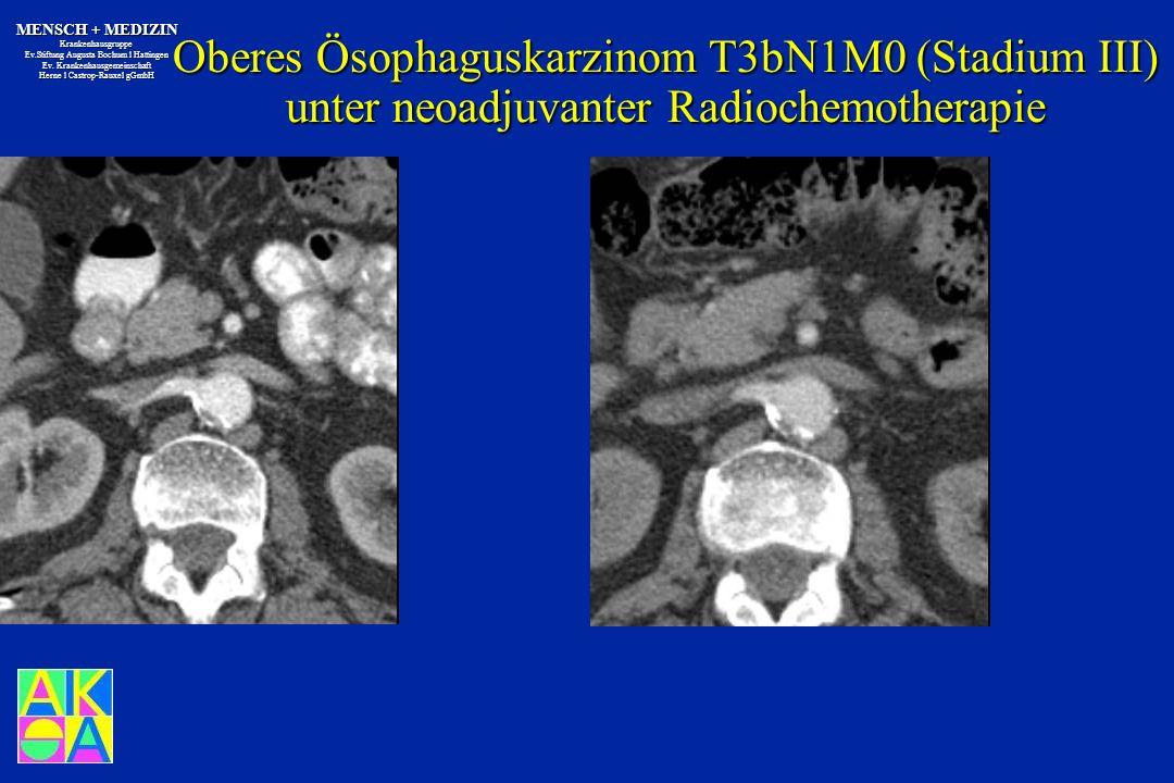Oberes Ösophaguskarzinom T3bN1M0 (Stadium III) unter neoadjuvanter Radiochemotherapie