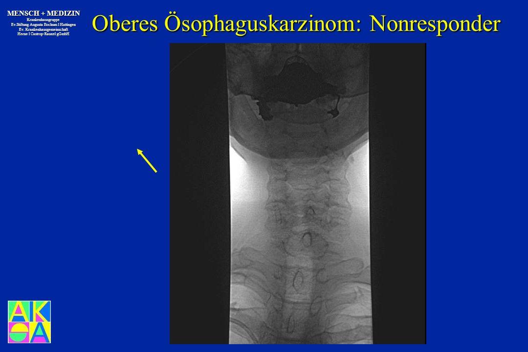Oberes Ösophaguskarzinom: Nonresponder