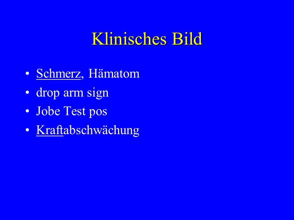 Klinisches Bild Schmerz, Hämatom drop arm sign Jobe Test pos