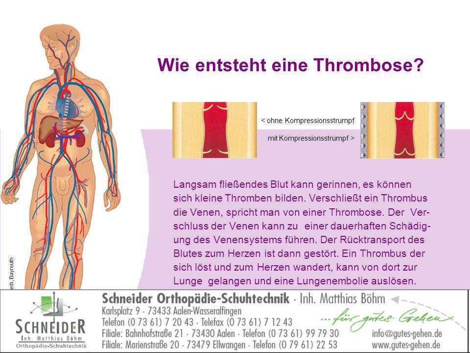Wie entsteht eine Thrombose